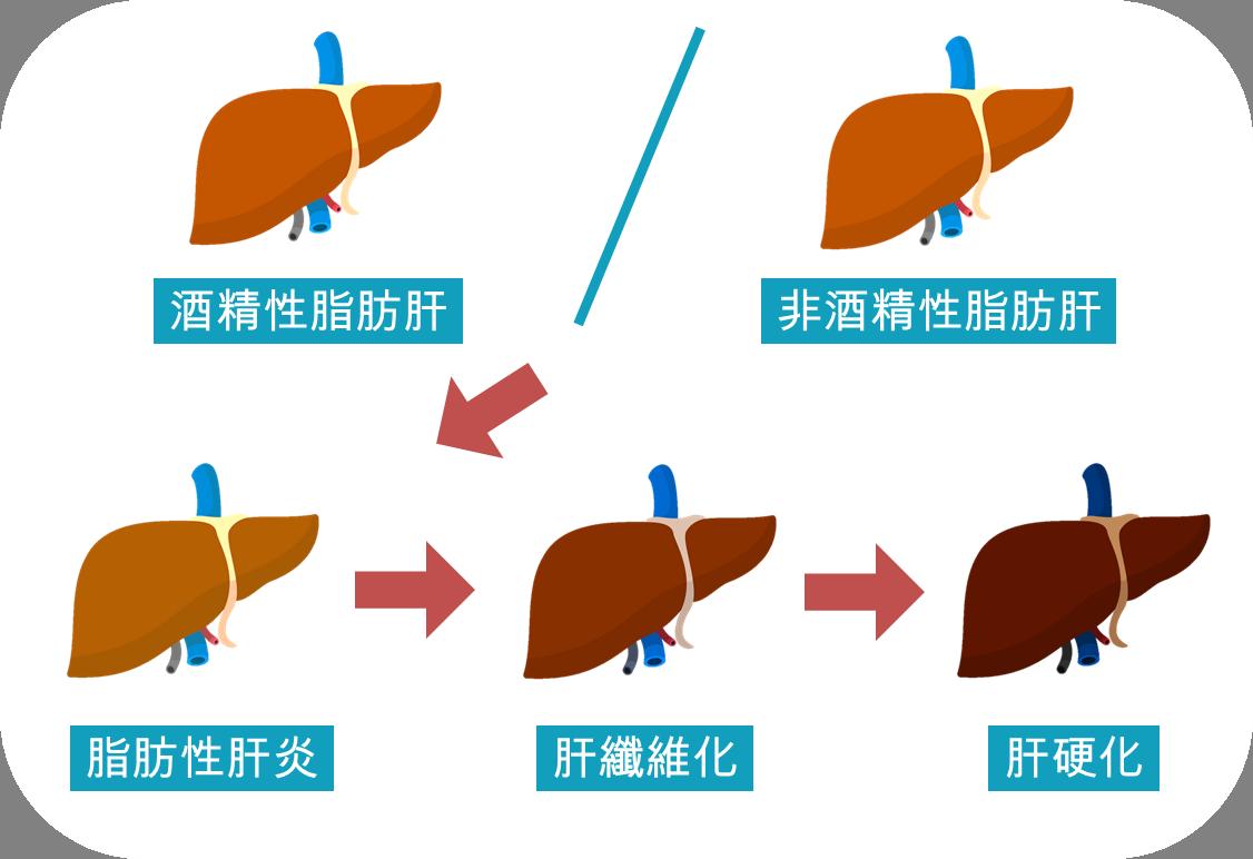脂肪肝會否引起其他肝病