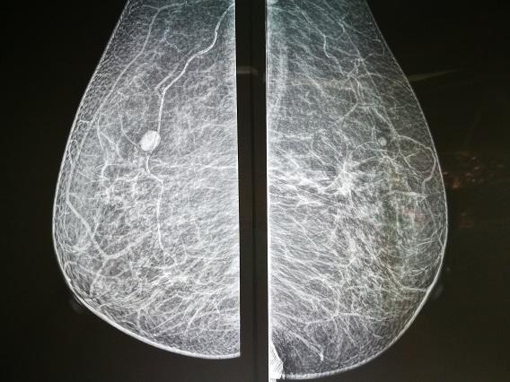 乳房X光造影檢查