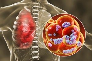 News: 肺炎球菌疫苗(肺炎鏈球菌針)注意事項