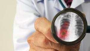 News: 新冠肺炎抗疫攻略 | 持續更新肺炎最新情況