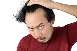 News: 【男士脫髮改善】拆解甩頭髮原因 - 7大防脫髮超級食物你要知!