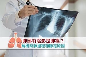 News: 【肺部X光】肺部有陰影是肺癌?解構照肺過程和肺花原因