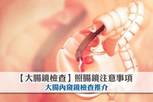 News: 【大腸鏡檢查】照腸鏡注意事項 大腸內窺鏡檢查推介