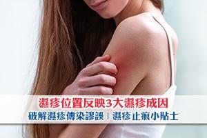 News: 濕疹位置反映3大濕疹成因!破解濕疹傳染謬誤 | 濕疹止痕小貼士