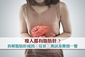 【脂肪肝Q&A】拆解脂肪肝成因、脂肪肝症狀 | 脂肪肝測試及費用一覽