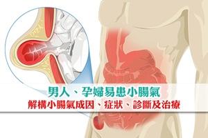 News: 男人孕婦易患小腸氣 醫生解構小腸氣成因、症狀、診斷及治療
